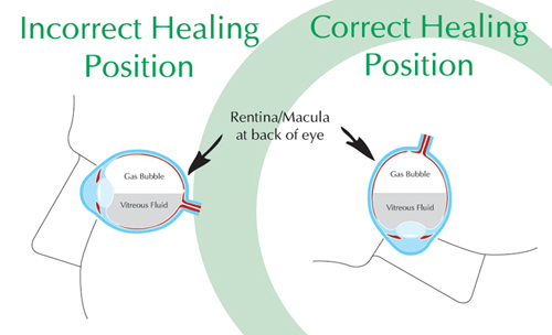 Healing Position